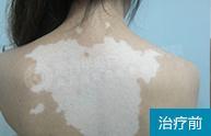 背部白癜风得到恢复,她是如何治疗的?